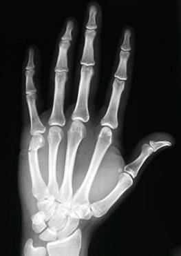 broken-index-finger-cast