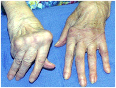 joint replacement in hands wrists and elbows