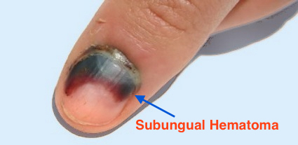 What Are The Symptoms Of Nail Bed Injuries