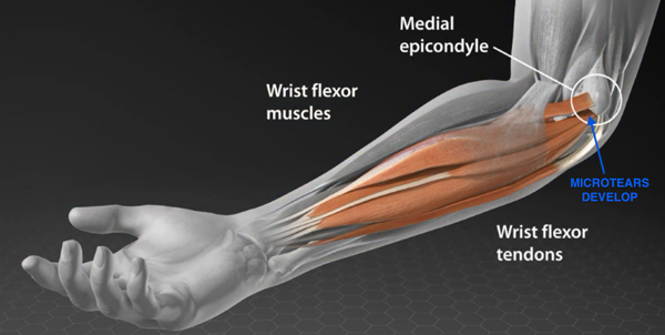 Golfers Elbow Doctor Dallas Fort Worth Golfers Elbow Surgeon