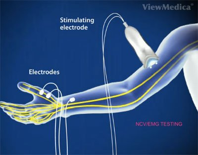 What to Expect During Nerve Conduction Study and EMG Test