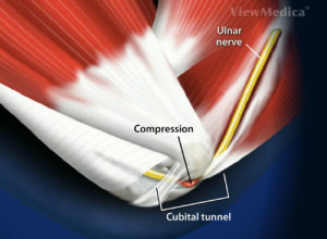 Cubital Tunnel Syndrome Doctor Los Angeles, Cubital Tunnel ...