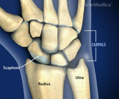 Wrist Fractures Surgeon on upper arm shape